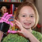 Handprothese für Kind aus 3D-Drucker
