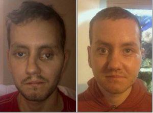 Gesicht Prothese 3D-Drucker Beispiel Stephan Power
