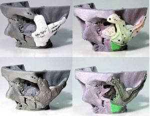 Gesichtsprothesen aus dem 3D-Drucker