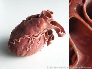 Herz aus 3D-Drucker