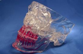 Gesichtsprothese aus dem 3D-Drucker
