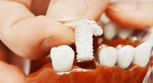 Zahnimplantat aus 3D-Drucker