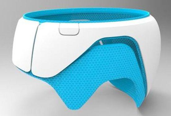 Schädeldeformationen: 3D-Druck verbessert Behandlung