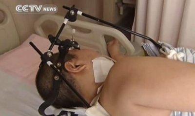 Junge nach Operation an Halswirbelsäule