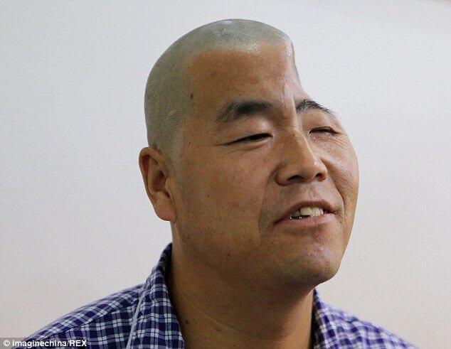 Chinesischer Landwirt erhält neue Schädelhälfte aus dem 3D-Drucker