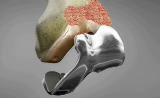 ConforMIS – Individuelle Knieprothesen aus dem 3D-Drucker