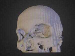 3D-Modell eines Schädels