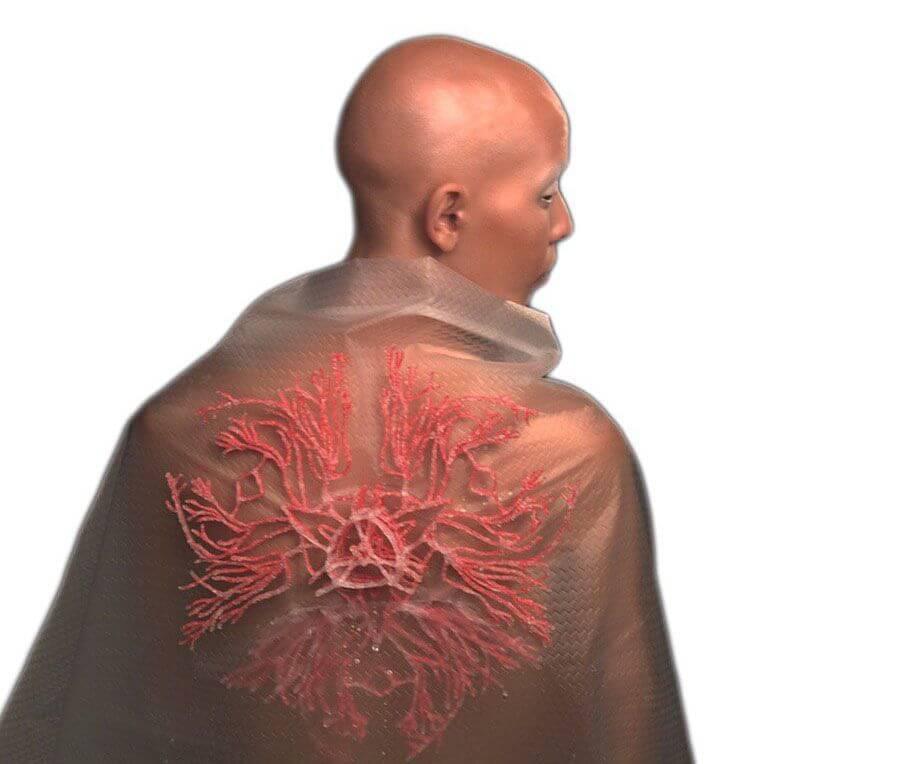 Dieses mit dem 3Doodler erstellte Objeklt von Adriana Restrepo symbolisiert eine Krankheit (Bild © Adriana Restrepo).