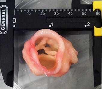 Herzklappe aus dem 3D-Drucker
