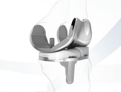 3D-Druck kann Kniegelenkersatz signifikant verbessern