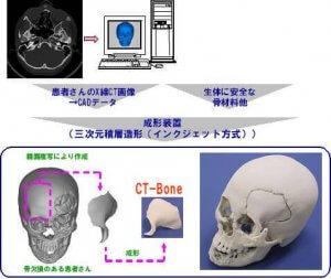Herstellung eines Knochens