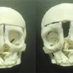 3D-Schädelmodell