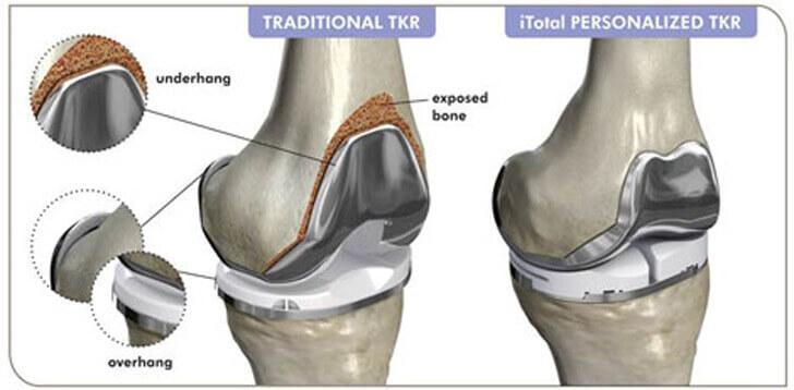 Knie-Implantate mit firmeneigener 3D-Drucktechnologie entwickelt