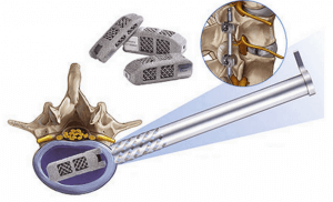 EndoLIF® joimax®-Implantat