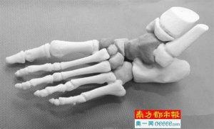 Knochen aus 3D-Drucker