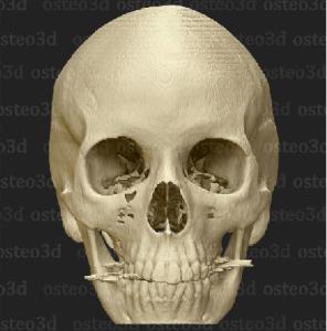 Osteo3d-Modell