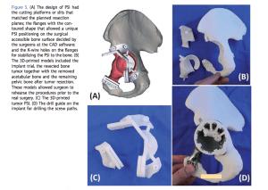 3D-Becken-Implantat