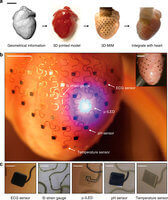 Modell Herzschrittmacher aus 3D-Drucker