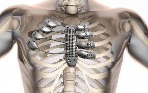 Brustkorb aus dem 3D-Drucker