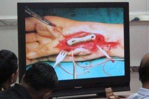 Titanprothese aus dem 3D-Drucker