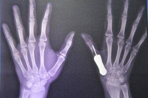 Titanprothese in der Hand