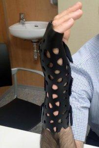 Verband für Knochenbruch aus 3D-Drucker