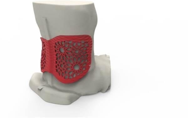Individuell gefertigte Rückenstütze für die lettische Fechterin Polina Rozkova. (Foto: © 3ders.org)