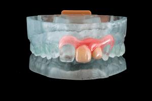 Zahnprothese aus dem 3D-Drucker