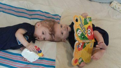 Die beiden siamesischen Zwillinge Jadon und Anais Mc Donald vor der Trennungs-OP. (Bild: © 3dprint.com)