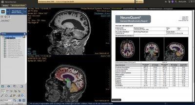 Die NeuroQuant-Messungen wurden in die IntelliSpace Plattform 9.0 integriert. (Bild: © Philips.com)