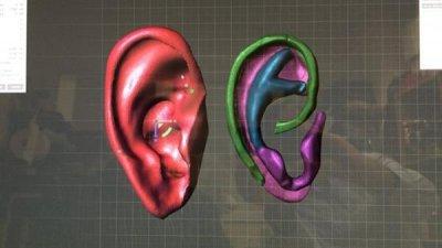 Scan des Ohres.