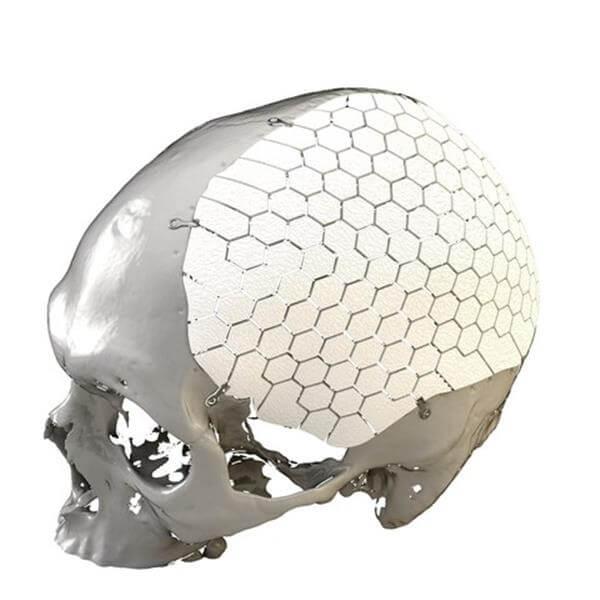 Schwedisches Unternehmen OssDsign AB erhält für 3D-gedruckte Schädelimplantate FDA-Zulassung