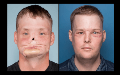 Mann vor und nach einer Gesichtstransplantation
