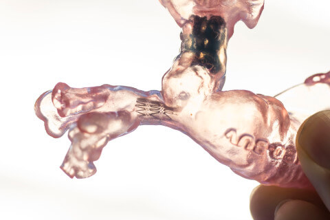 3D-gedrucktes Kinderherz.