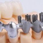 Metallelemente der Zahnprothese.