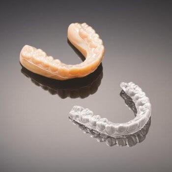 Zahnschiene aus dem 3D-Drucker