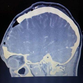 Schädel CT-Scan