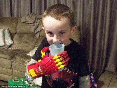 3D-gedruckte Hand