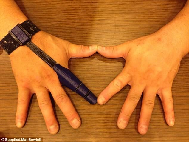 3d-gedruckte Fingerprothese