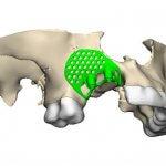 Oberkiefer aus dem 3D-Drucker