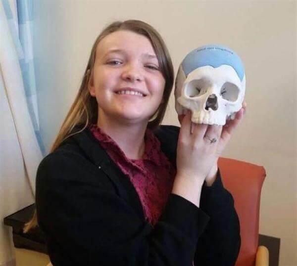 20-jährige Tiffany erhält Schädelimplantat aus dem 3D-Drucker