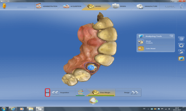 Screenshot CEREC SW 4.5