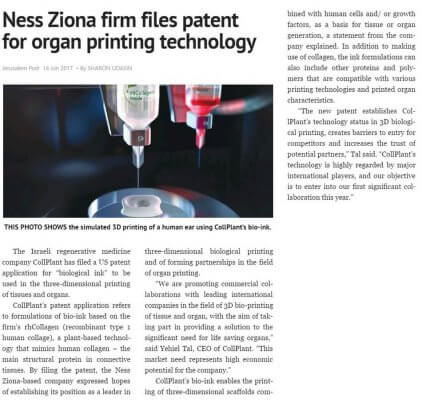 CollPlant-Patent in der Jerusalem Post