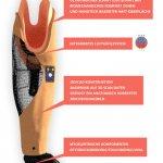 Grafische Darstellung 3D-gedruckter Unterarmschaft