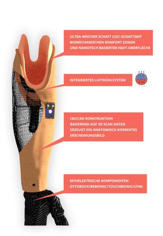 Graphische Darstellung 3D-gedruckter Unterarmschaft