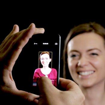 Digital Smile Design Scan