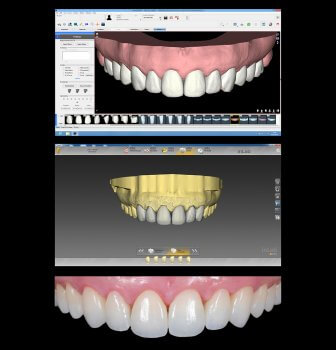 Screenshot Digital Smile Design