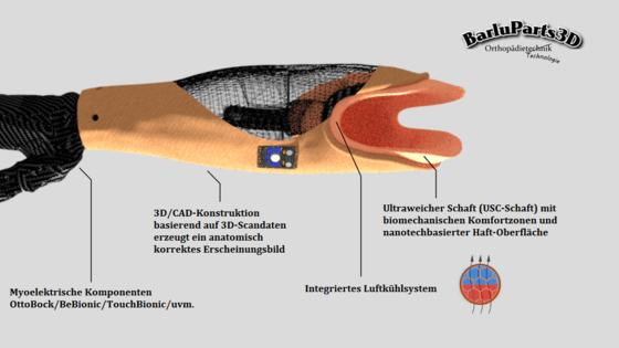 3D-gedruckter Unterarmprothesenschaft