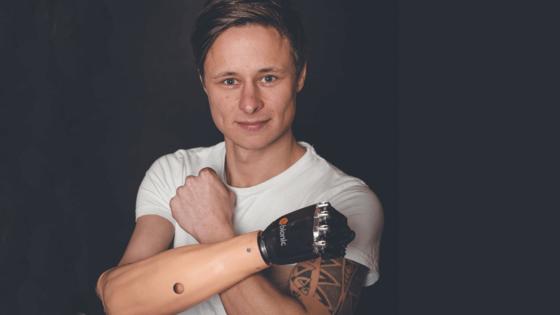 Philipp Barluschke mit seiner Unterarmprothese