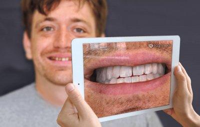3D-Scanner für Zähne